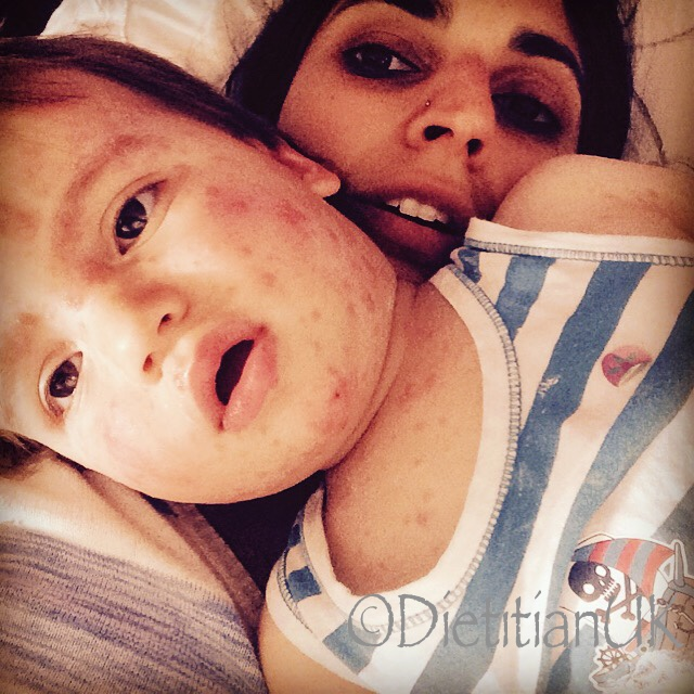 Dietitian UK: Chicken pox boy 1